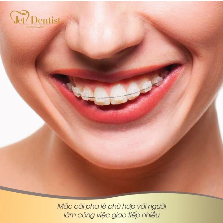 3 điều cần cân nhắc cho việc niềng răng ở tuổi 30