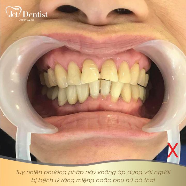 Jet Dentist - Gợi ý cách làm đẹp răng THẦN TỐC trước khi Du lịch Hè